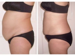 StrawBerry-Laser-Lipo-Before-After